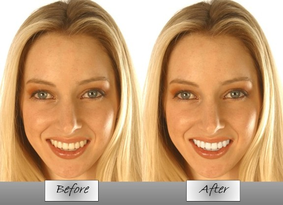 Before and After - Whitening